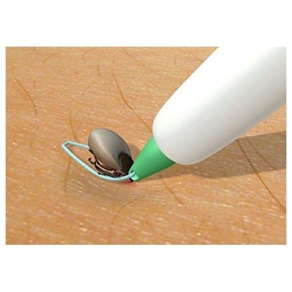 Flåttfjerner løkke plast-penn